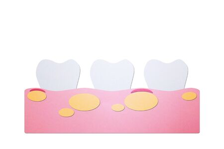 unhealthy teeth because gingivitis with abscess in gum and dental plaque or tartar - tooth cartoon paper cut style cute character for design Stock Photo