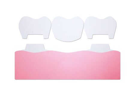 dental crown with bridge, installation process and change of teeth - tooth cartoon paper cut style cute character for design Фото со стока