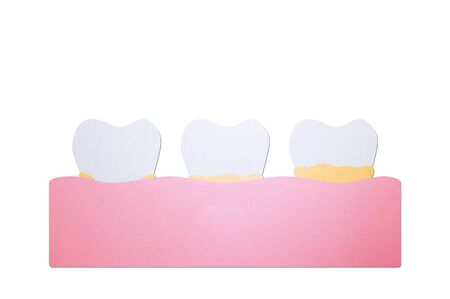 step of plaque or tartar, cause of tooth periodontal disease - dental cartoon paper cut style cute character for design