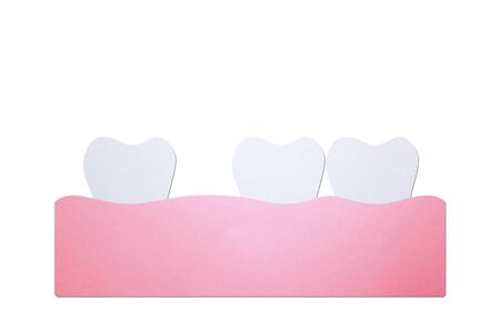 spacing teeth (diastema), dental problem - tooth cartoon paper cut style cute character for design