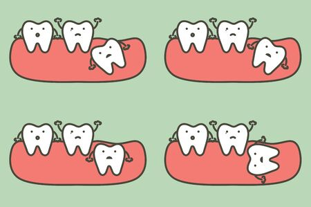 type of wisdom tooth affect to other teeth - dental cartoon vector flat style cute character for design Иллюстрация