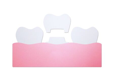 dental crown, installation process and change of teeth - tooth cartoon paper cut style cute character for design Banque d'images
