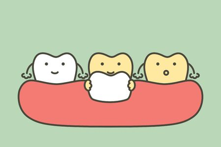 dental veneers installation procedure for tooth whiten - teeth cartoon vector flat style cute character for design