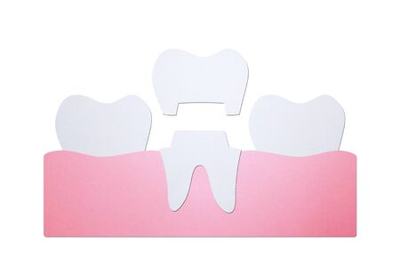 dental crown, installation process and change of teeth - tooth cartoon paper cut style cute character for design Фото со стока