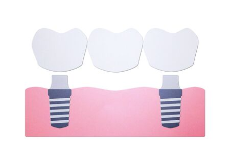 tooth implant with bridge, installation process and change new root for teeth - dental cartoon paper cut style cute character for design