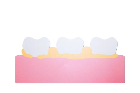 plaque or tartar, cause of tooth periodontal disease - dental cartoon paper cut style cute character for design