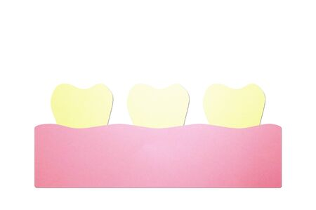 yellow teeth, dental plaque or tartar - tooth cartoon paper cut style cute character for design