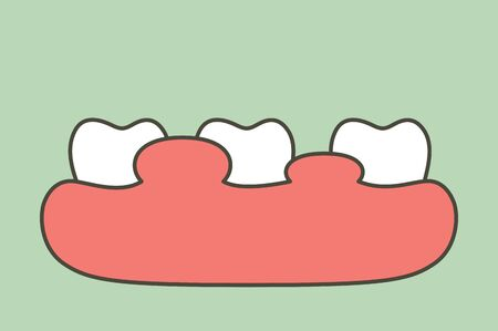 unhealthy teeth because gingivitis or gum disease with abscess, gum is swollen - dental cartoon vector flat style cute character for design