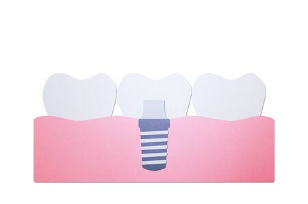 tooth implant, installation process and change new root for teeth - dental cartoon paper cut style cute character for design