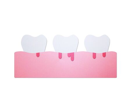 periodontitis or gum disease with bleeding ( blood flow come from gum and tooth ), dental problem - teeth cartoon paper cut style cute character for design