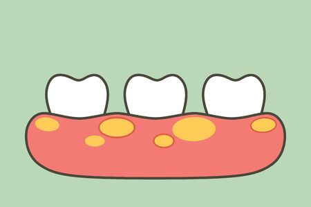 unhealthy teeth because gingivitis or gum disease with abscess in gum - dental cartoon vector flat style cute character for design