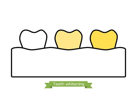 white to yellow tooth, teeth whitening before and after concept - dental cartoon vector outline flat style cute character for design