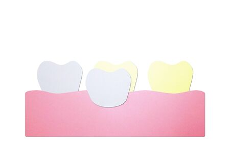 dental veneers, putting new veneers on discolored tooth - teeth cartoon paper cut style cute character for design Banque d'images