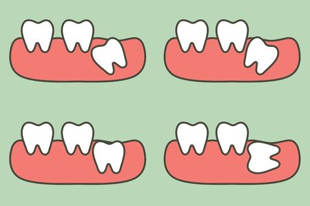 type of wisdom tooth affect to other teeth - dental cartoon vector flat style cute character for design Illustration