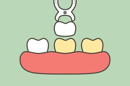 dental veneers installation procedure for tooth whiten - teeth cartoon vector flat style cute character for design