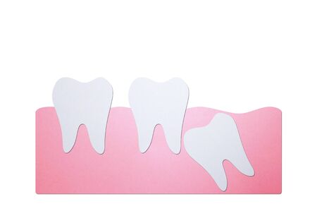 wisdom tooth ( angular or mesial impaction ) affect to other teeth - dental cartoon paper cut style cute character for design Banque d'images