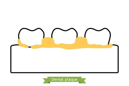 dental plaque or tartar, cause of tooth periodontal disease - teeth cartoon vector outline flat style cute character for design Фото со стока - 143080300