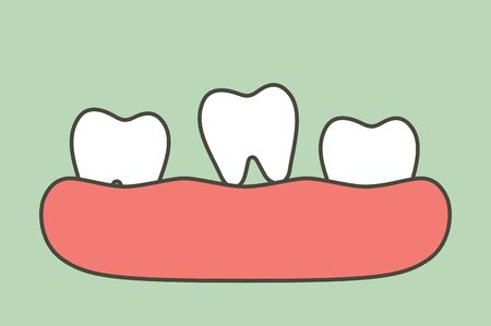loose tooth, tooth is fall out of the gum - dental cartoon vector flat style cute character for design