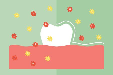 Compare tooth between by protection and not protection bacteria, microbe or virus around teeth - dental cartoon vector flat style cute character for design