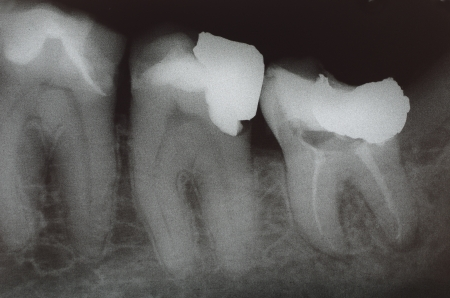 view of teeth after X-ray overexposure photo