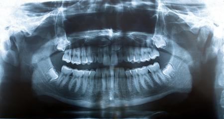 molares: imagen panorámica de rayos X de los dientes
