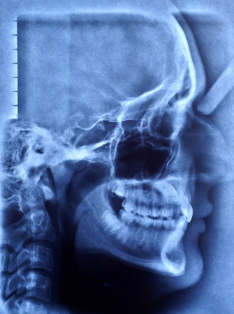 molares: imagen de rayos x del cr�neo humano