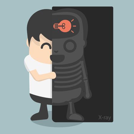 Machine à rayons X a trouvé la lampe dans le cerveau d'homme d'affaires