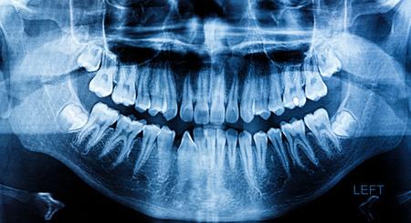 Photo X-Ray scan human