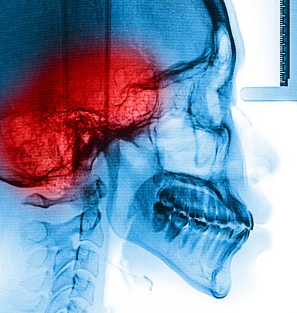 X-Ray scan human  photo