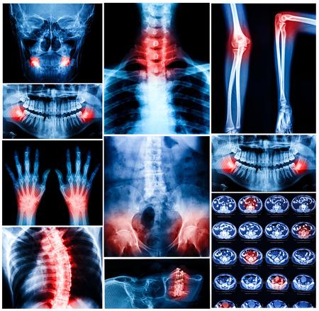Collage of human X-rays photo photo