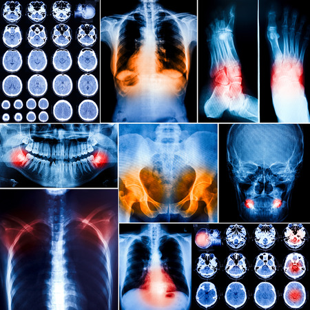 Collage of human X-rays photo photo