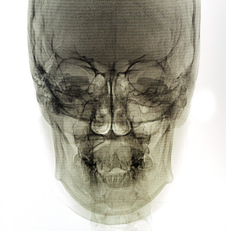 X-Ray scan human photo