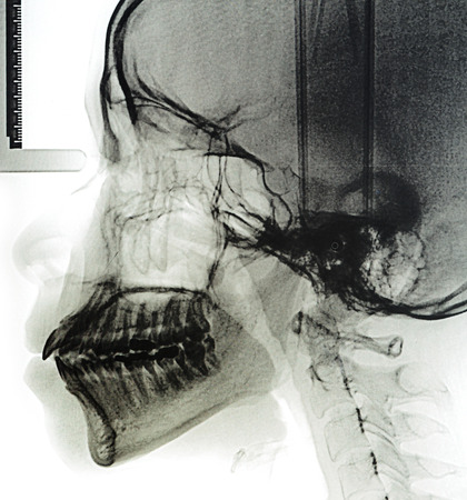 X-Ray scan human for teeth photo