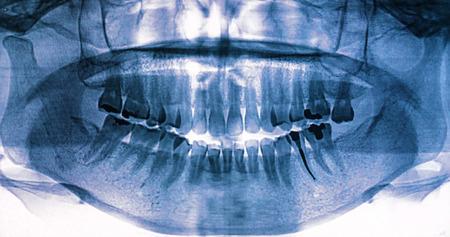 X-Ray scan human for teeth photo