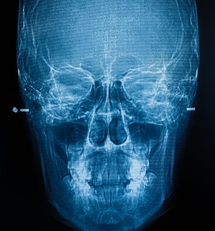 film X-Ray scan human photo