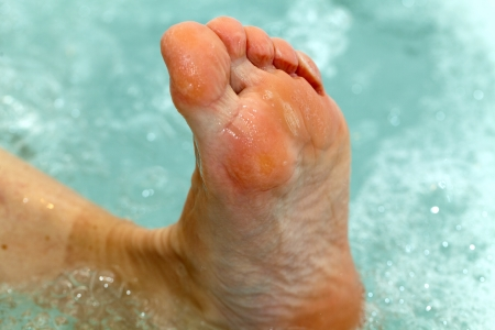 ecological problem: the water massage of tired feet Stock Photo
