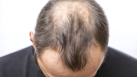 Balding young man, Hair loss problem 版權商用圖片