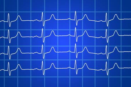 heart ecg trace: heart beats electrocardiogram over blue