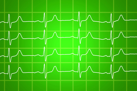 heart beats electrocardiogram over green background