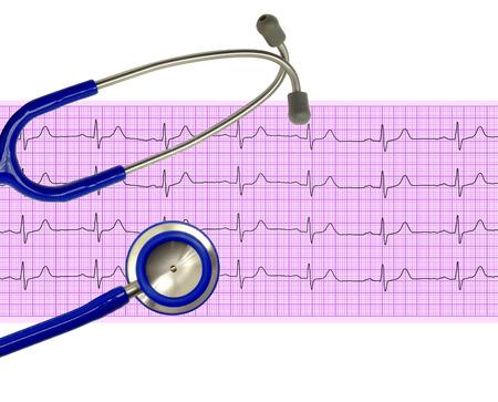 elettrocardiogramma: Heart analysis, electrocardiogram graph (ECG) and stethoscope Archivio Fotografico