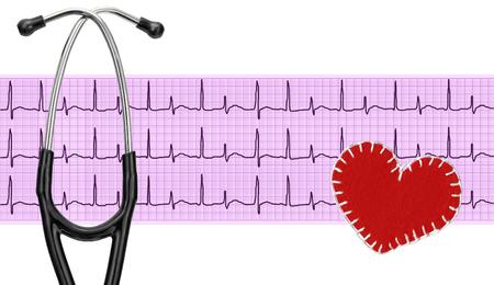electrocardiograma: stethoscope, electrocardiogram graph (ECG) and textile heart Foto de archivo