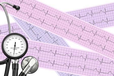 Stetoscopio sul foglio cardiogramma di cardiologia del paziente. Cardiologo e il concetto medico