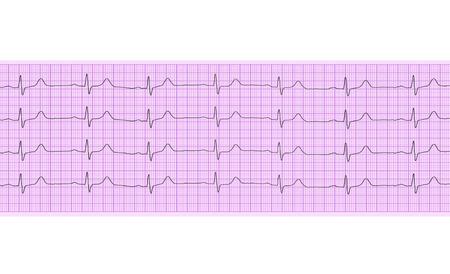 electrocardiograma: Análisis del corazón, gráfico de electrocardiograma (ECG) Foto de archivo