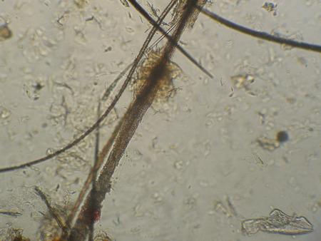 Cheveux de chat endommagé dermatophytes Microsporum canis, un microscope, une augmentation de 600 fois. Banque d'images
