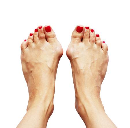 足の外反母趾変形クロス扁平足 (外反母趾) と白地に靭帯の弱さのため。扁平足の 3 分の 1 程度。