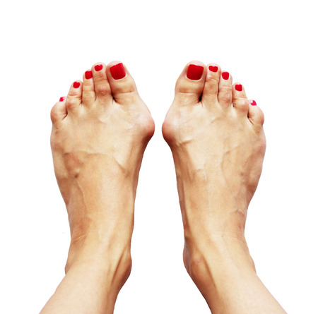 contortion: Valgus deformity of legs due of the cross flatfoot (hallux valgus) and weakness of ligaments on  a white background. Flatfoot third degree.
