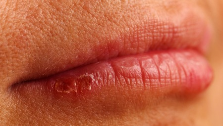 labialis: manifestation of herpes on the lower lip of a woman Stock Photo