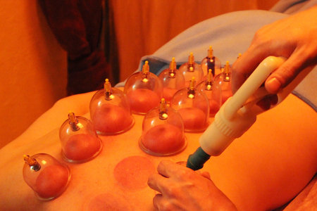 cupping glass cupping: Multiple vacuum cup of medical therapy and Hematoma after removing medical cans Stock Photo