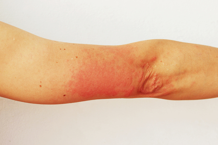 Red pustules and vesicles on the skin of the hand as symptoms of photodermatitis. Allergic reaction to sunlight. Allergy