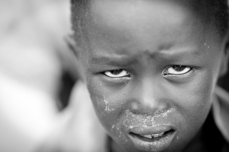 BOR, SOUTH SUDAN-NOVEMBER 4 2013: Unidentified child in Bor, South Sudan with suffering on his face.